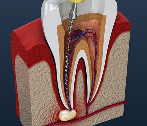 illustration of inside tooth