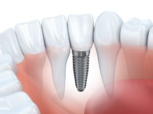 Dental implant in a lower jaw